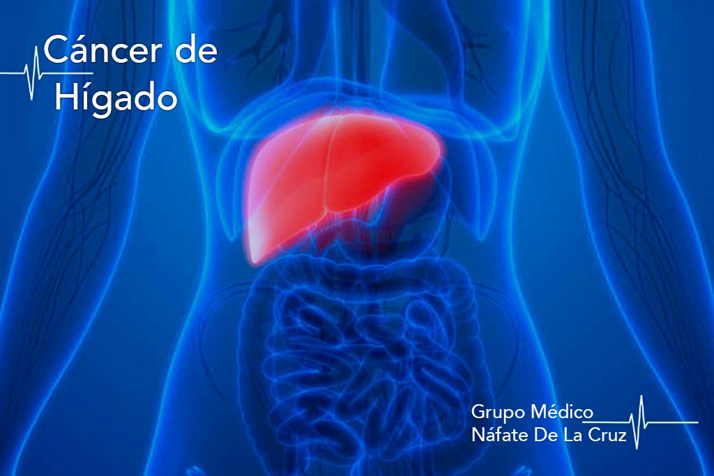 cáncer de hígado