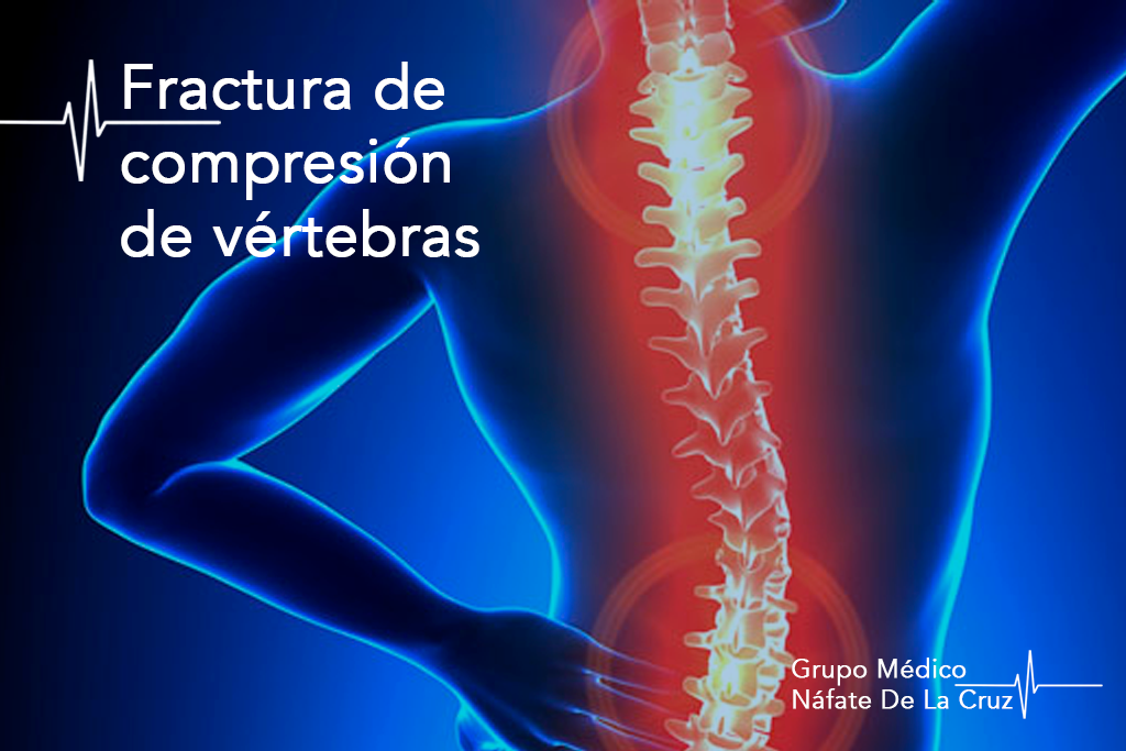 fractura de compresión de vértebras